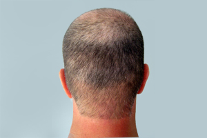 Back of Eds Head