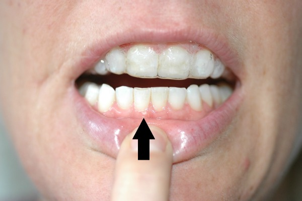 White Spots On Teeth After Whitening - Simple