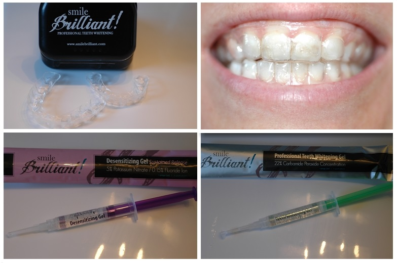 Smile Brilliant Teeth Whitening Cleaning