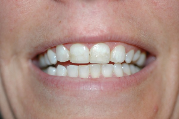 Smile Brilliant Teeth Whitening Finish