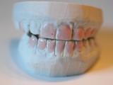 Smile Brilliant Teeth Mold