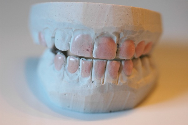 Smile Brilliant Teeth Mold